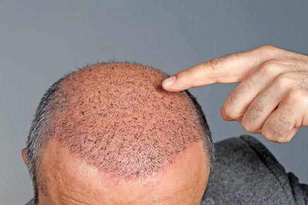 قرمز شدن پوست سر بعد از کاشت مو