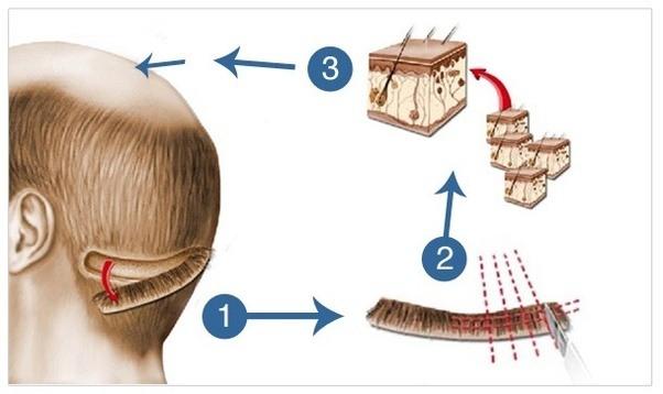 مراحل کاشت مو به روش FUT