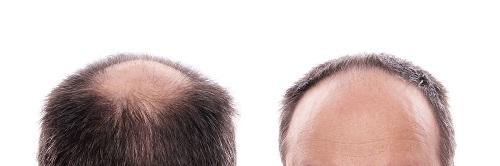 کاشت مو-کلینیک کاشت مو