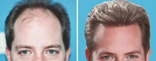 Hair-transplantation-clinic