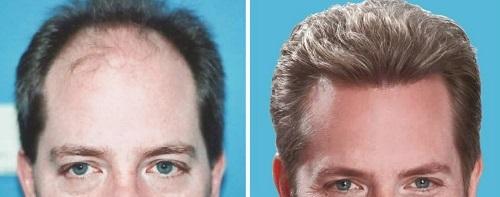 Hair-transplantation-clinic