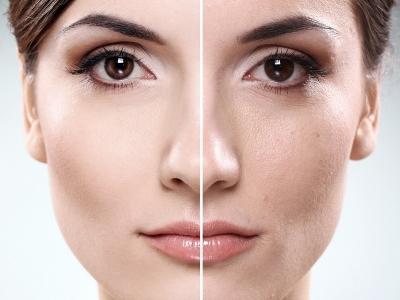 پاکسازی و لایه برداری پوست