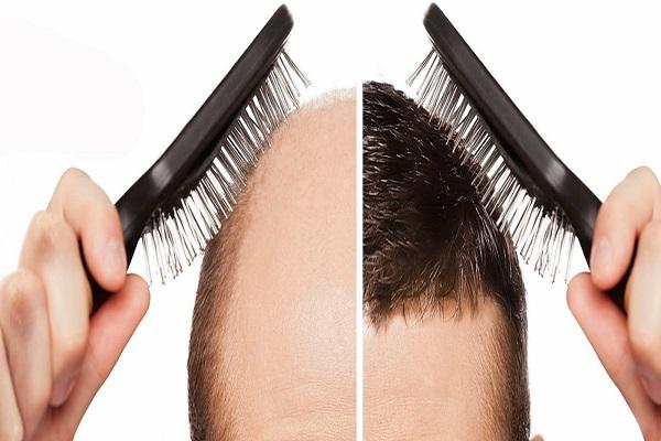 کاشت مو بهترین روش برای کم مویی و بی مویی
