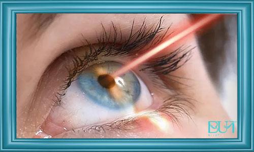 آشنایی با جراحی لیزیک چشم