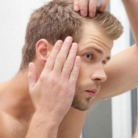 ریزش موی آقایان _ کلینیک